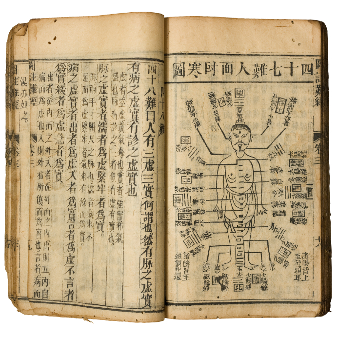 Acupuncture-from Ancient Roots to Clinical Trials - Abacus ...